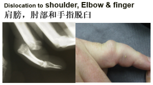 dislocation to elbow or finger